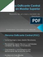 Fibroma Osificante Central en Maxilar Superior