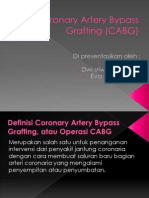 PPT Coronary Artery Bypass Grafting (CABG)