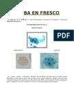 acido urico alto e prostata como se mide el acido urico en la orina es malo el pepino para el acido urico