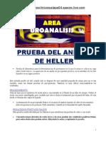 Prueba Del Anillo Heller