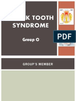 Crack Tooth Syndrome