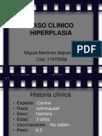 hiperplasia