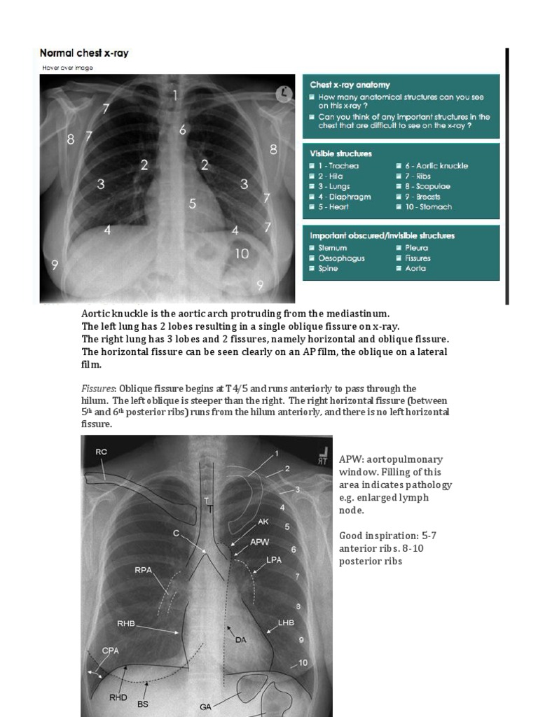 Chest X Ray Basics Lung Anatomical Terms Of Location