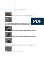 Axis Traction Device for Delivery Forceps
