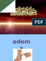 Edema - Copy
