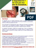 Accidente Con Pulidora[1]