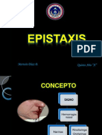 Epistaxis Expo..