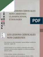 Les Lesions Cervicales Non Carieuses