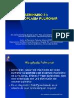 hipoplasia pulmonar PRESENTACION