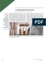 Homozygous Familial Hypercholesterolaemia
