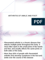Arthritis of Ankle and Foot