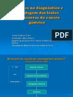 CANCRO GASTRICO FMUP