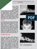 Occipital Dysplasia Associated To