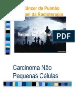 CancerdePulmao_radioterapia