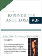 Espondilitis Anquilosante Expo Para Casos Buena