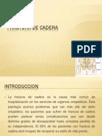 Fractura de Cadera 2