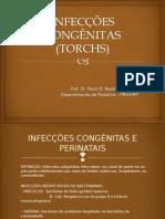 AULA UC V - INFECÇÕES CONGÊNITAS (TORCHS)