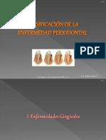 clasificacindelaenfermedadperiodontal-jgc-111106184819-phpapp01