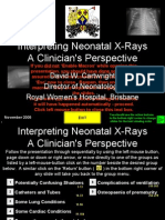 Interpretting Neonatal Xrays [Click Enable Macros]