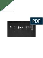 Southen Blot Gel,usm 2008 (molecular biology)