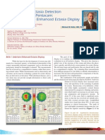 Belin Ambrosio Enhanced Ectasia Detection