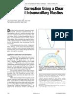 17567245 DeepBite Correction Using a Clear Aligner and Intramaxillary Elastics