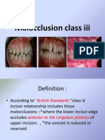 Malocclusion Class III
