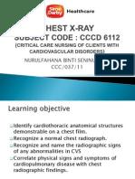 CHEST X-RAY Presentation CVS