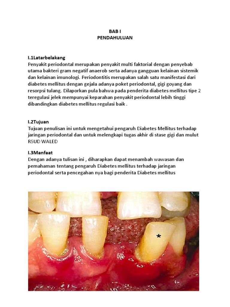 Diabetes Mellitus Dan Penyakit Periodontal 5e354d9a12