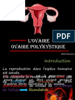 ovaire polykystique
