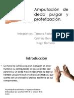 Amputación de dedo pulgar y protetización