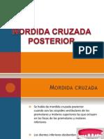 Mordida Cruzada Posterior