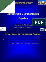 Síndromes Coronarianas Agudas_UFF
