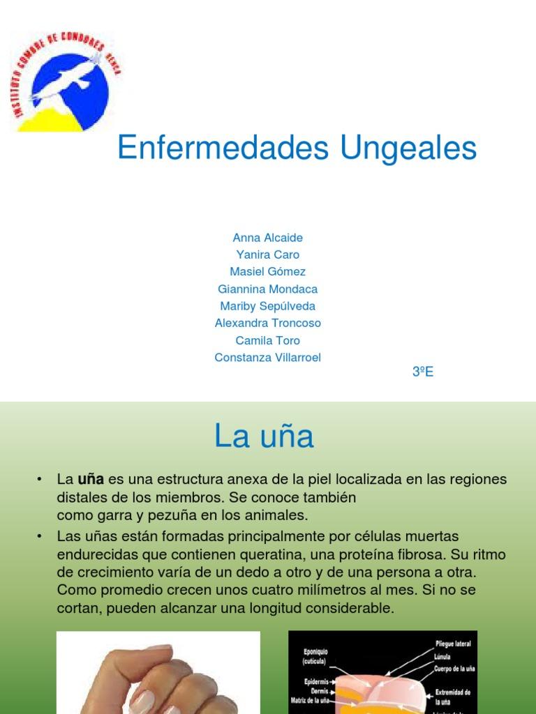 Bonito Enfermedades De Las Uñas Festooning - Ideas Para Pintar Uñas ...