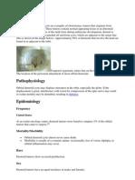 Dermod Cyst