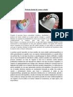 Prótesis dental de cromo cobalto