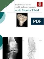 Fracturas de Meseta Tibial Expo 1221005581814517 9