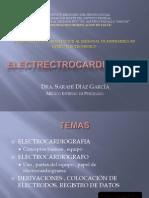 ELECTRECTROCARDIOGRAMA