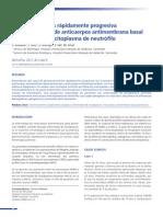 Glomerulonefritos y Sx de Goodpasteur