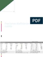 Fracturas Diafisiarias de Cubito