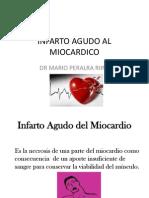 INFARTO MCP