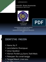 Case Bedah 3, Hernia Femoralis
