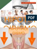 Hipotiroides