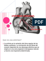 9. Arritmias Cardiac As, Angina de Pecho e Infarto Al Miocardio