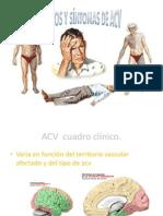 ACV Cuadro Clínico