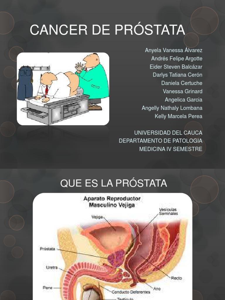 patología del cáncer de próstata ppt