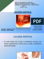 Ulcer A