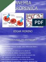 30. Anemia Ferropenica