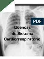 Doenças do Sistema Respiratório