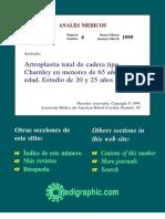Artroplastia total de cadera tipo Charnley en menores de 65 años (D y P)